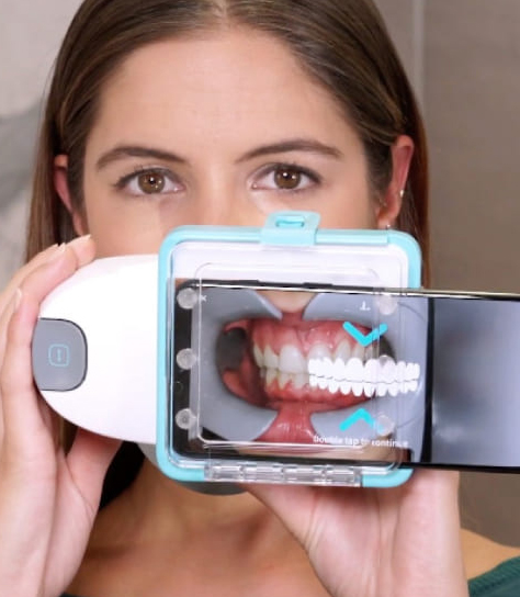 Vivi Sorridendo - dental monitoring
